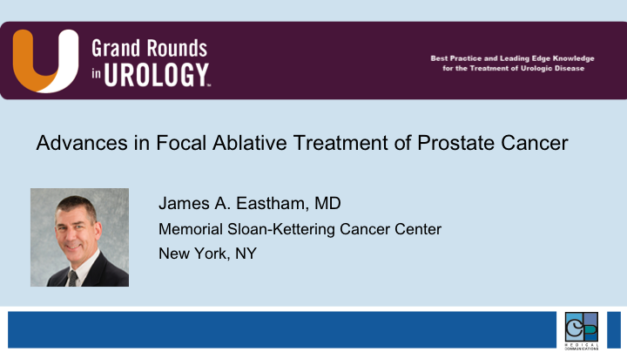 Advances in Focal Ablative Treatment of Prostate Cancer