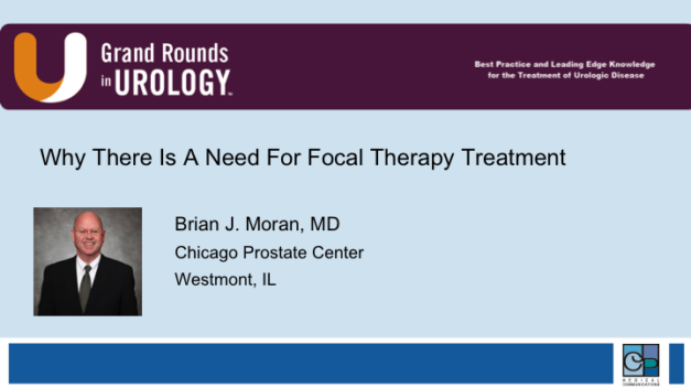 Why There Is A Need For Focal Therapy Treatment