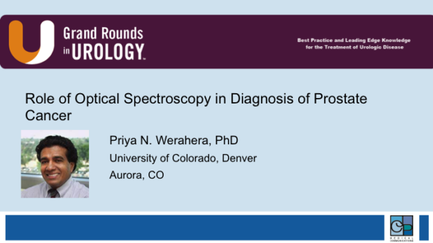 Role of Optical Spectroscopy in Diagnosis of Prostate Cancer