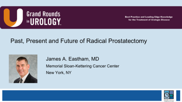 Past, Present and Future of Radical Prostatectomy
