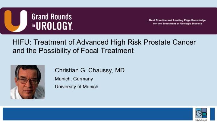 Dr  Chaussy | HIFU: Treatment of Advanced High Risk Prostate