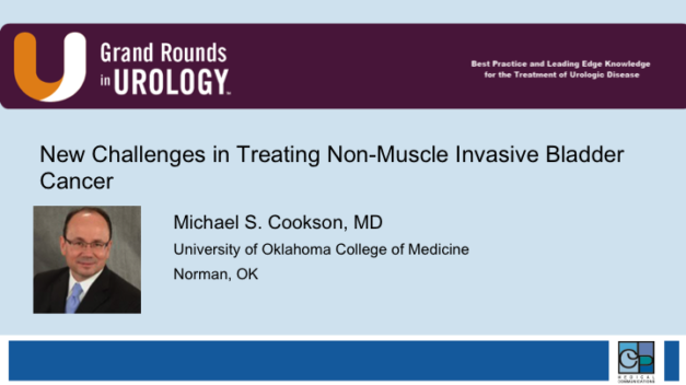 New Challenges in Treating Non-Muscle Invasive Bladder Cancer