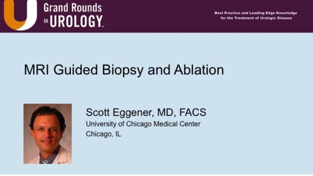 MRI Guided Biopsy and Ablation