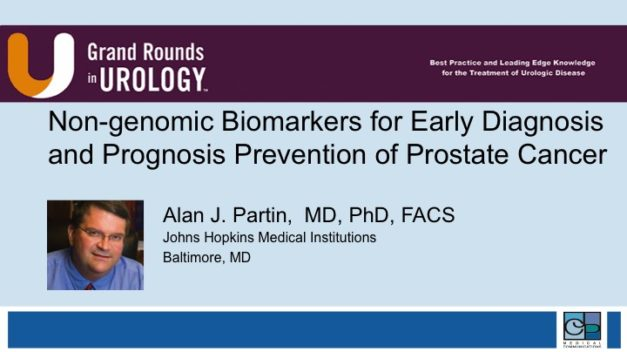 Non-genomic Biomarkers for Early Diagnosis and Prognosis Prevention of Prostate Cancer