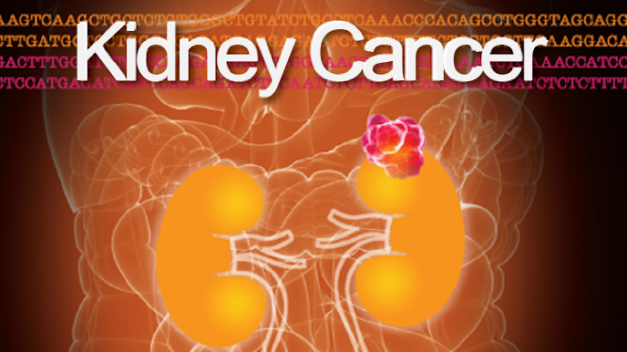 Kidney Cancer Journal | Volume 3, Issue 4