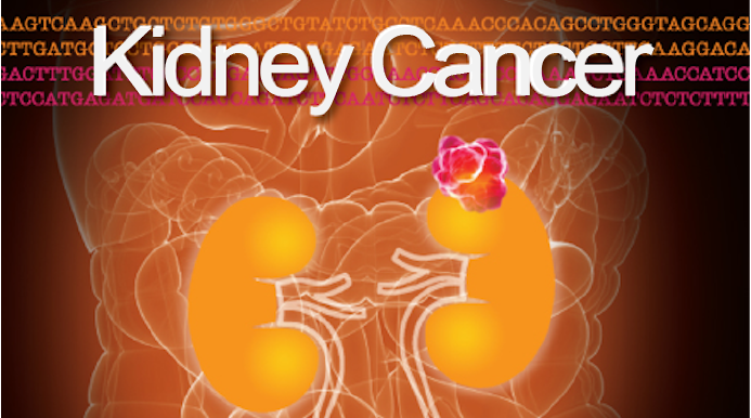 Kidney Cancer Journal Vol 3 Issue 1 Grand Rounds In Urology