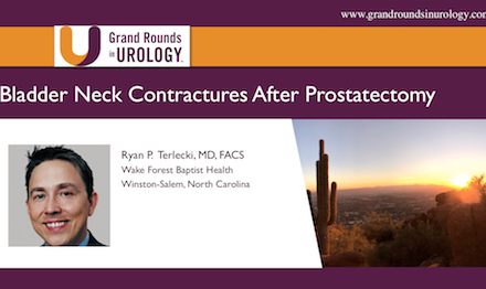 Bladder Neck Contractures After Prostatectomy