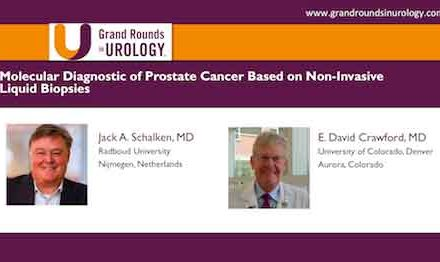 Molecular Diagnostic of Prostate Cancer Based on Non Invasive Liquid Biopsies