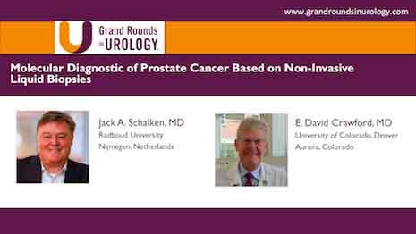 Molecular Diagnostic of Prostate Cancer Based on Non Invasive Liquid Biopsies