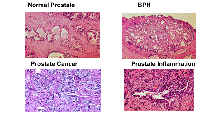 Prostate Inflammation And Prostate Cancer What Do I Need To Know
