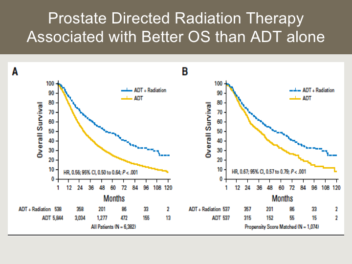 New Considerations for Oligometastatic Prostate Cancer