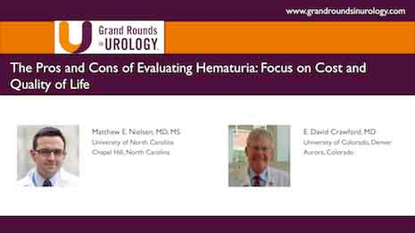 The Pros and Cons of Evaluating Hematuria