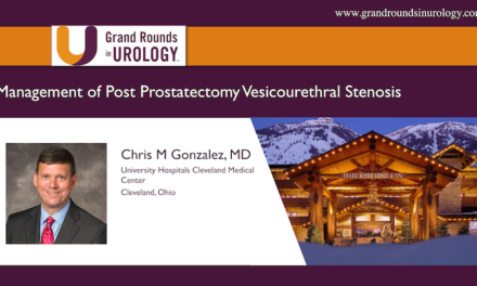 Management of Post Prostatectomy Vesicourethral Stenosis