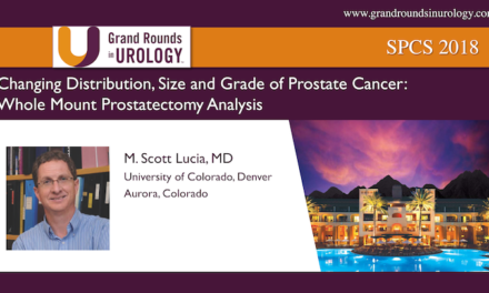 Changing Distribution, Size and Grade of Prostate Cancer: Whole-Mount Prostatectomy Analysis