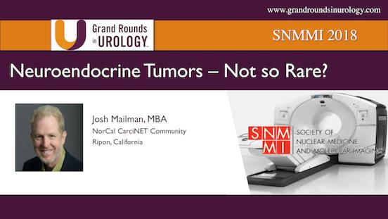 Neuroendocrine Tumors | Not so Rare?