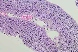 Bladder with low grade papillary urothelial carcinoma.