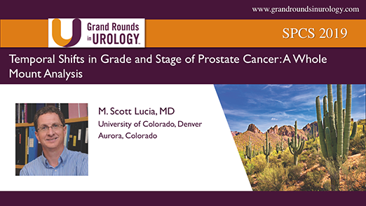 Temporal Shifts in Grade and Stage of Prostate Cancer: A Whole Mount Analysis