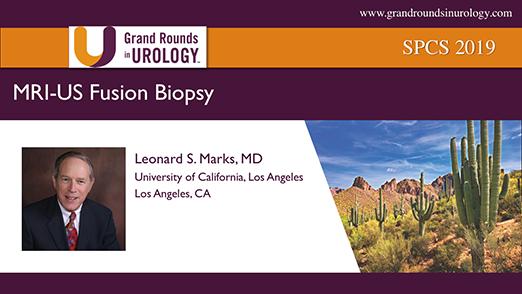 MRI/US Fusion Biopsy
