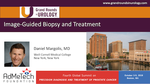Image-Guided Biopsy and Treatment