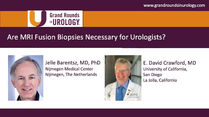 Dr. Barentsz - MRI Fusion Biopsy