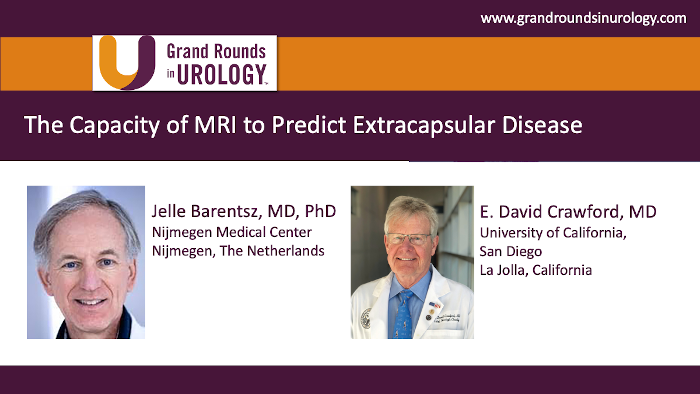 The Capacity of MRI to Predict Extracapsular Disease