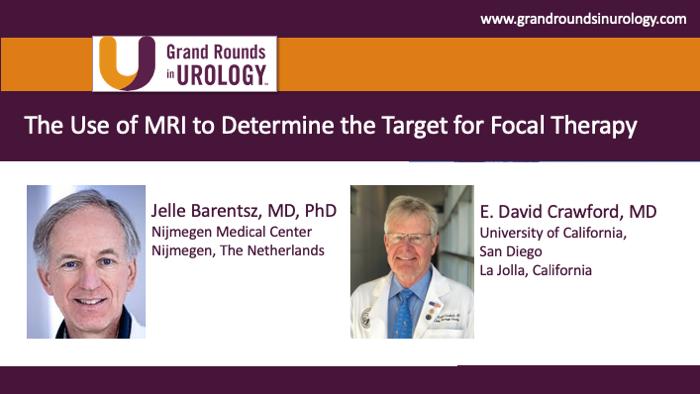 Dr. Barentsz - MRI Focal Therapy