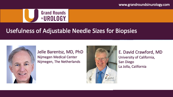 Usefulness of Adjustable Needle Sizes for Biopsies