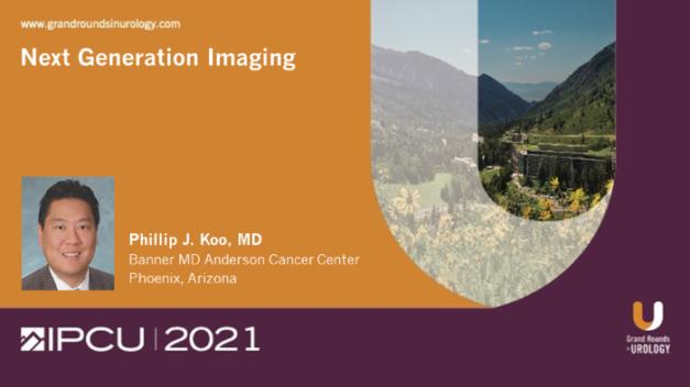 Next Generation Imaging for Prostate Cancer