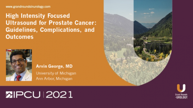 High Intensity Focused Ultrasound for Prostate Cancer: Guidelines, Complications, and Outcomes