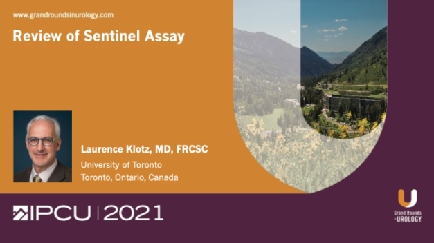 Review of Sentinel Assay for Prostate Cancer Diagnosis